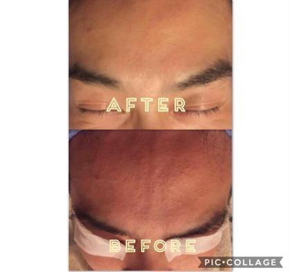 お肌の老化は紫外線の影響が!  日焼け前後のケアが大切☆速攻性があるお手入れで夏の日焼けもたった一度の施術で赤みが鎮静され、角質肥厚もスッキリ綺麗に✨  一切加工してません