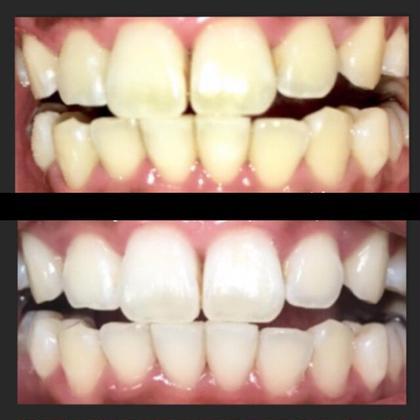国産高級ジェル使用❗️ホワイトニング10分❌3照射体験 🦷輝く白い歯を✨
