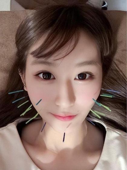 🌈期間限定メニュー🌈美容鍼(美顔針)+ローラ鍼