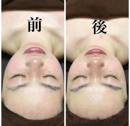 小顔フェイシャル✨全体的にシャープな仕上がりです。