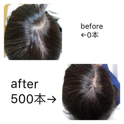 増毛エクステ🦰カウンセリング&300本 男女歓迎!