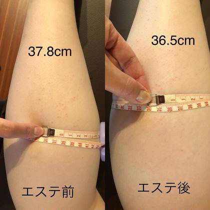むくみスッキリ!脚エステ  ※セルライトを流す脂肪をエステで細かくして流します。個人差で少し痛みあり