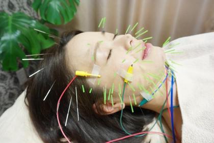 美容鍼 ハリセンボン美容鍼 ネイル&まつ毛エクステサロン 優美美容鍼灸院所属・女性院長のスタイル
