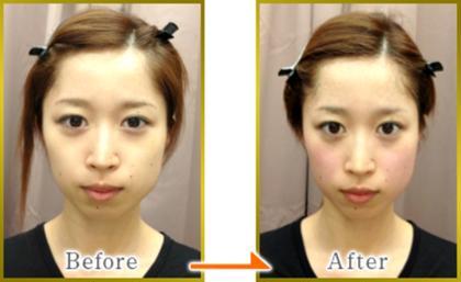 美容鍼施術効果  効果に個人差はあります。 隆健スポーツ鍼灸整骨院所属・隆健スポーツ鍼灸整骨院代表加藤隆のフォト