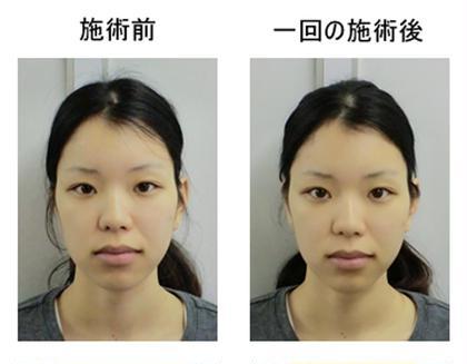 人気no.1小顔矯正コース撮影モデル 10月1日〜10月9日までは予約いっぱいなので、10月10日以降お願いします。