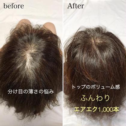 エアエク☆薄毛でお困りの方に自然に髪の毛増やします!