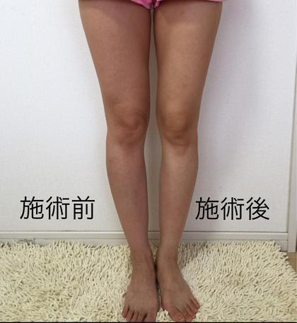 【BODYの予約初回のみ】癒しません‼️細くします‼️セルライト&浮腫み撃退エステ