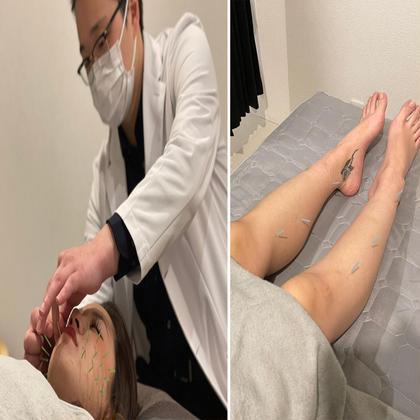 早くお肌の状態を整えて行きたい方にオススメ‼️顔+身体の美容鍼😁※肌診断機カウンセリング付き