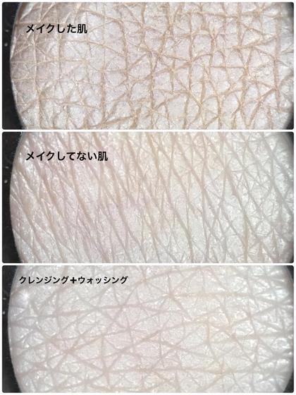 キメの変化わかりますか?1度のお手入れでこんなに メナードフェイシャルサロン所属・yabesayakaのフォト