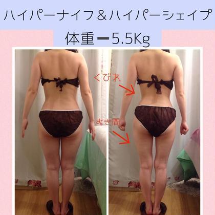 【初回体験】驚きのサイズダウン🔥ハイパーナイフ痩身コース60分(全身可)
