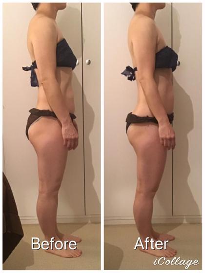 丸くなっていた背中・肩が真っ直ぐに❣️骨盤の前傾も改善され、お腹の見え方が変わります✨脚全体もむくみが取れてスッキリ💓お尻も綺麗になりました💛
