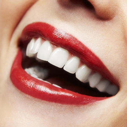 【確実に歯を白くしたい方にオススメ】初回限定★フリーパス3週間通い放題