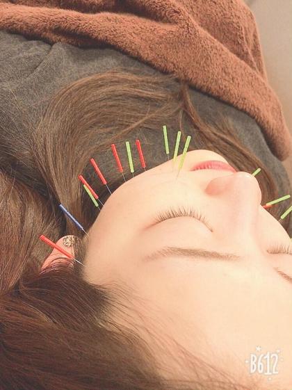 ✴️美顔鍼+全身マッサージ✴️