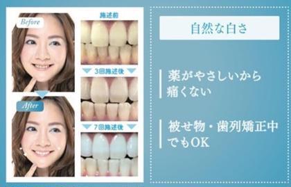 🦷歯のエステ🦷セルフホワイトニング✨ 1回30分のご来店で、本来の歯の白さに🦷✨