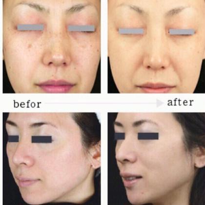 美顔鍼には、リフトアップと美肌も後日現れる効果もあります。 らむトータルボディケア 鍼灸 骨格矯正所属・花木グリコのフォト