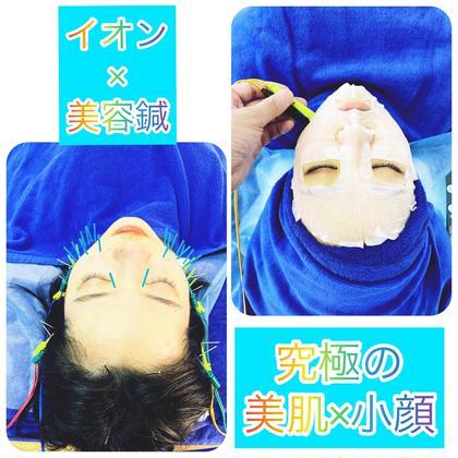 💄イオン美容鍼コース💄話題騒然‼️究極の美肌MAKE【イオン導入】と小顔MAKE【美容鍼】スペシャルメニュー✨