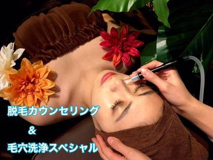 👑ミニモ限定特別メニュー👑✨毛穴洗浄スペシャル&脱毛無料カウンセリング✨❤️ 最新美容体験❣️満足度98%👑