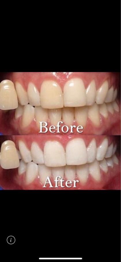 【期間限定掲載】最安値🌹美白ホワイトニング8分2照射🦷✨白い歯を痛みなしで仕上げます✨✨