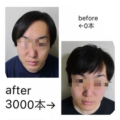 増毛エクステ🦰カウンセリング&500本 SNSに載せていい方限定❤️ もちろんモザイクします☺️ 男女歓迎!