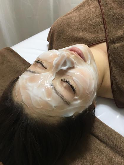 【むくみ・くすみが気になる方へ】筋膜リフト+水素パック むくみスッキリ小顔効果🌹活性酸素除去で美白効果🌹