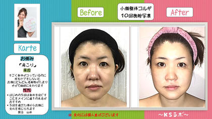 KSラボ新瑞橋所属・小顔プランナー辰巳愛美のフォト