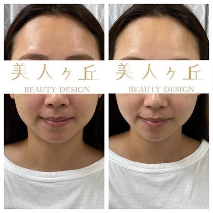 効果実感9割以上🏅小顔矯正なのに気持ちいい🍀首肩筋膜リリースでお疲れ解消&小顔効果UP❤️60分♪メイクしたままOK