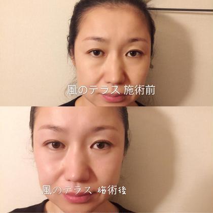 🎀中国伝統の養生!カッサ棒で眼精疲労、目力アップ