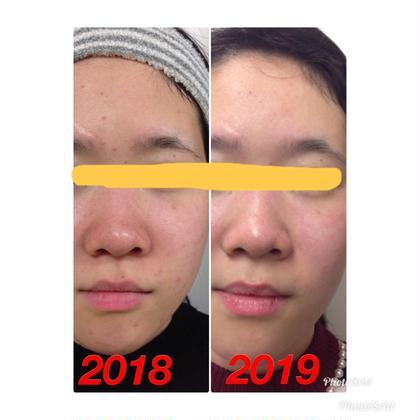 1年間のお肌の変化になります