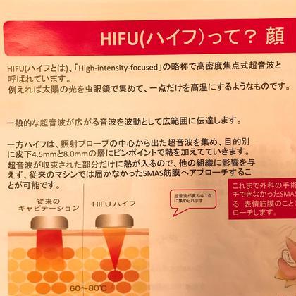 小顔ケア*hifuu3000sh*痛みのない最新マシンで効果を体感◎筋膜を縮め、むくみたるみ改善で小顔へと!