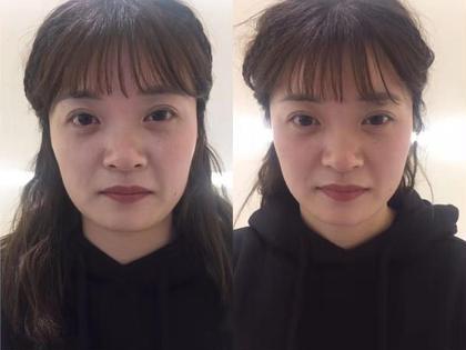 【初回ミニモ限定価格】★大人気の小顔メニュー☆安いから続けやすい♫60分美肌+小顔矯正コース✨