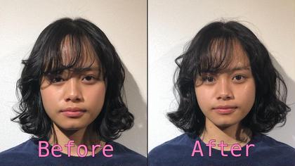 小顔はもちろんのこと肌質も改善されました! J-pract(ジェイプラクト)所属・松田龍逸のフォト