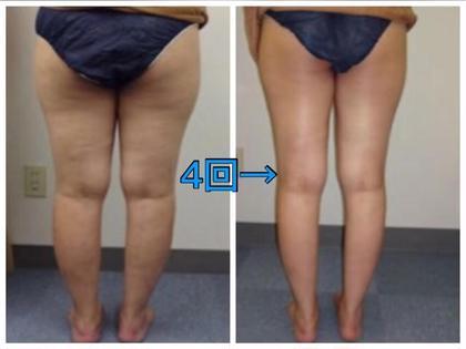 12🈷️【特别限定】痩身&乾燥肌&ほうれい線&超音波美白+小顔コルギ+キャビ+アロマ120分29800➡️9980