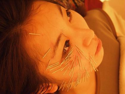 【初回料金】✨気になるお顔のしわ・たるみに効果的✨しっかりとお顔の美顔筋まで響かせる深刺し美容鍼✨minimo限定コース