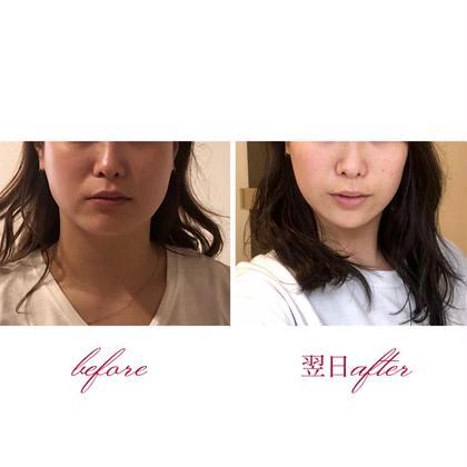 《👑当サロン人気No.1》結果を早く出したい方へ✨むくみ改善小顔矯正+頭蓋骨調整ヘッドスパ(50分)