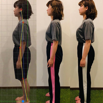 ◆初回限定◆ ✨猫背解消‼️肩甲骨・骨盤の歪みを正す✨全身調整コース❤️💛💚