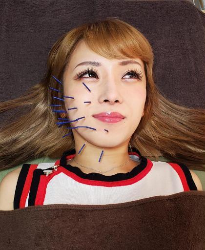 【女優针プリンセス】📸撮影モデルさん駆け込みメニュー🏃♀️ 🍸️イベントやデート前におすすめ🌺無料→美容灸🤲