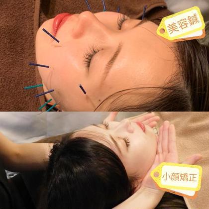 大人気💃美顔セット 美容鍼+小顔矯正