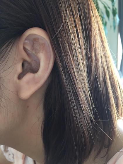 耳に金粒を貼ってますが、肌色のテープ敏感肌の方向けのテープ使用で目立ちません!わかりますか?  ベリーショートでも、気づかれることもありません。