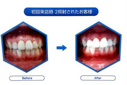 🦷歯のホワイトニング2回