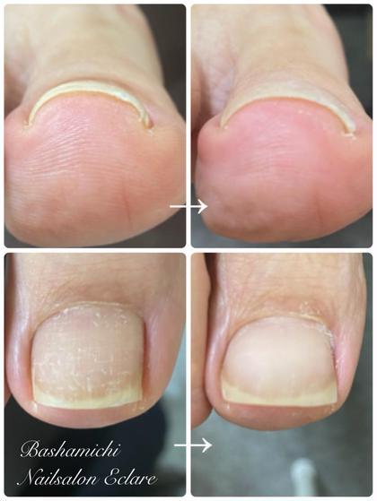 アクリル巻爪矯正⭐︎器具を装着せずに巻爪ケアが出来ます。見た目も美しく、ジェルネイルも可能。