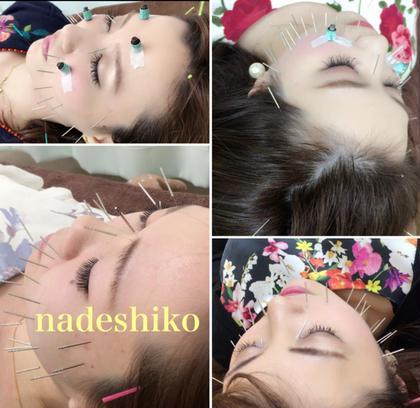 美容鍼灸nadeshiko所属のはり灸整骨院なでしこ