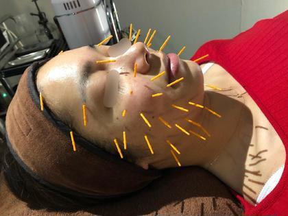 セントラル鍼灸院 Re:laxy所属のセントラル鍼灸院Re:laxy
