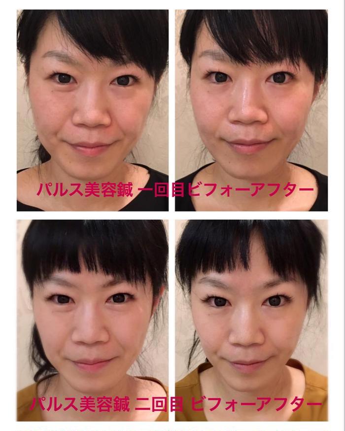 鍼 効果 美容