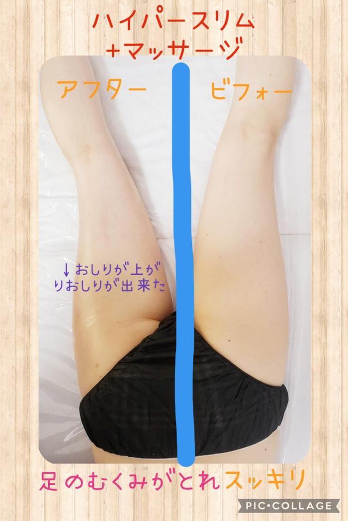 その他 足の浮腫が気になる😣セルライトが気になる😱そんな方にピッタリ❤️1回で効果がわかる🔥機械で脂肪にアプローチをしてリンパマッサージでしっかり流します✨
