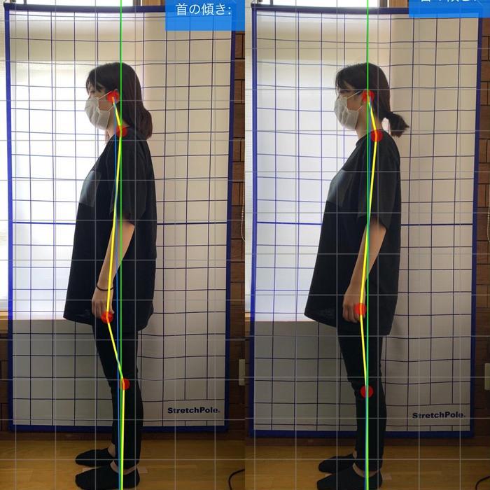 その他 キッズ メンズ ロング 首の位置が一回で変化でました👏 胸も張れてますね(^^)!