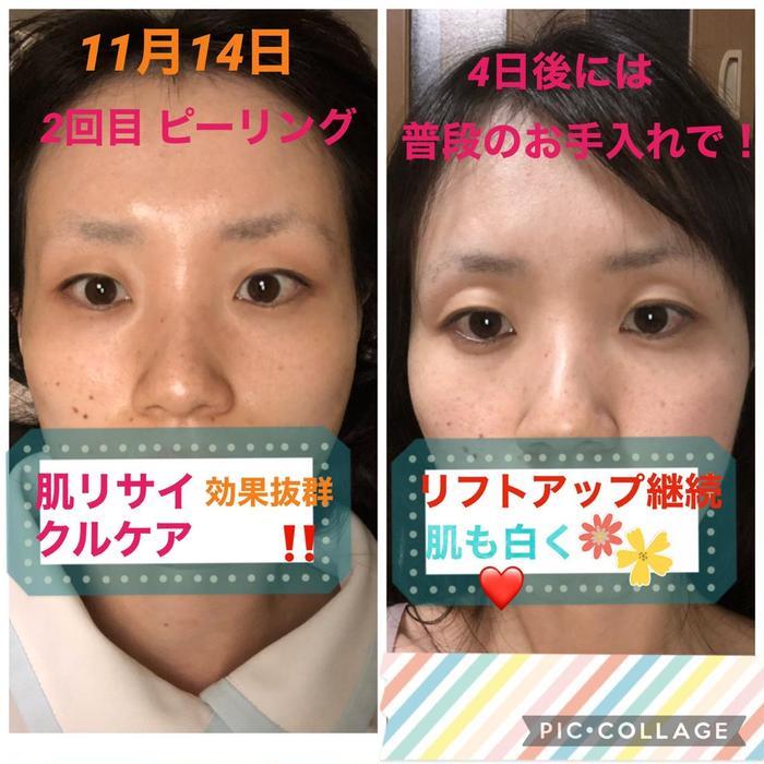 その他 写真の効果は美肌効果がでる液を使用してます❤️たった2回でこの白さ😆✨ ニキビが気になる方も油分を取ってくれるものを使用します!コロナでマスク生活の中どうしても顔の乾燥や肌荒れが気になる😣そんな方におすすめします♪