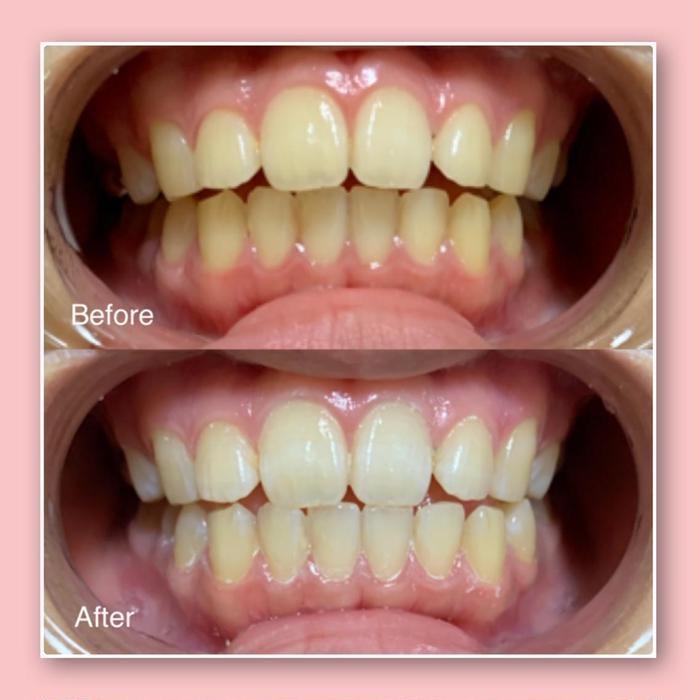 その他 歯のセルフホワイトニングbefore・after写真です✨  1回目の施術でも、トーンアップしたのが良くわかりますね🦷✨  気になる方は是非1度お試し下さいませ🦷✨