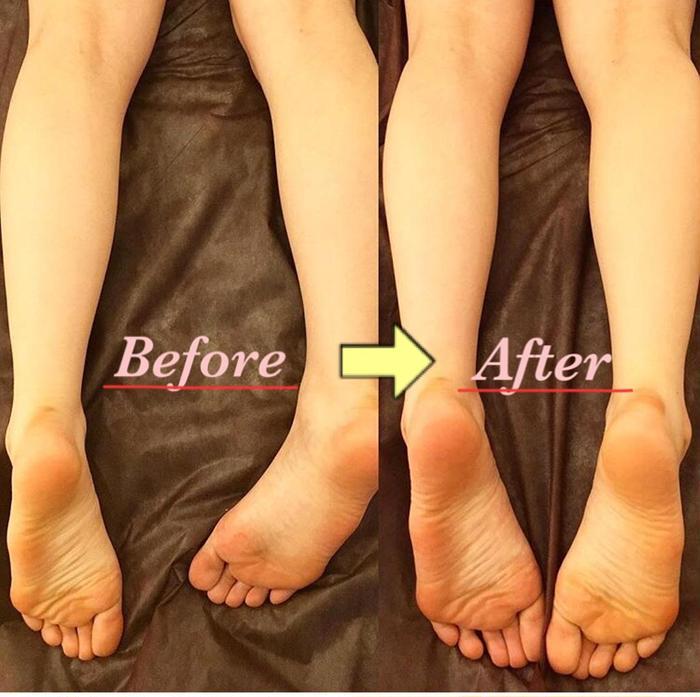 骨盤矯正】 こちらのお客様は、右足が左足より短く、右足が外側に傾い ...