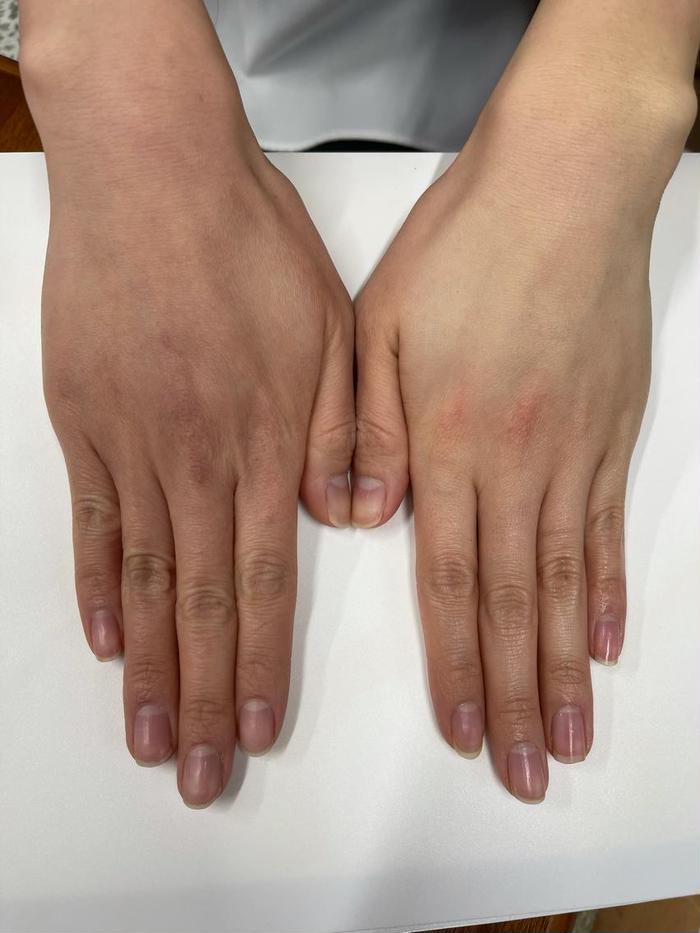 その他 RedBA ビギニングエンハンサー✨ 一回使用するだけでお肌の透明感アップ✨ 化粧水の浸透率が高まります☺️