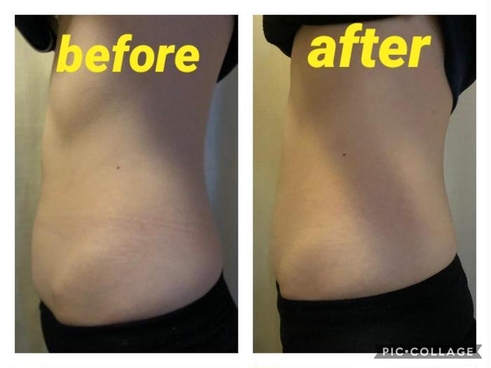 その他 最新マシン😆✨たった30分でこのかわりようです❤️ 3万回の腹筋運動と19%の脂肪細胞を減らし16%筋肉量増加💕寝てるだけで運動効果抜群🔥 エムスカルプト是非一度お試し下さい😊✨